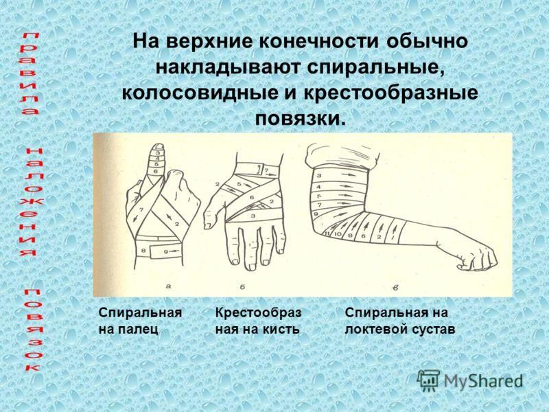 На верхние конечности обычно накладывают спиральные, колосовидные и крестообразные повязки. Спиральная на палец Крестообраз ная на кисть Спиральная на локтевой сустав