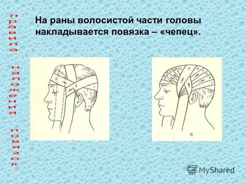 На раны волосистой части головы накладывается повязка – «чепец».
