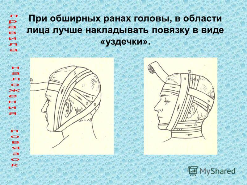 При обширных ранах головы, в области лица лучше накладывать повязку в виде «уздечки».