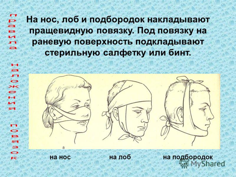 На нос, лоб и подбородок накладывают пращевидную повязку. Под повязку на раневую поверхность подкладывают стерильную салфетку или бинт. на носна лобна подбородок