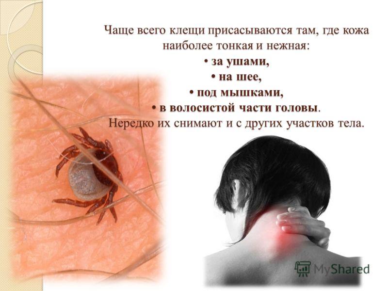 Чаще всего клещи присасываются там, где кожа наиболее тонкая и нежная: за ушами, на шее, под мышками, в волосистой части головы. Нередко их снимают и с других участков тела.