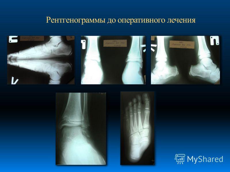 Рентгенограммы до оперативного лечения