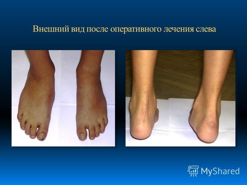 Внешний вид после оперативного лечения слева