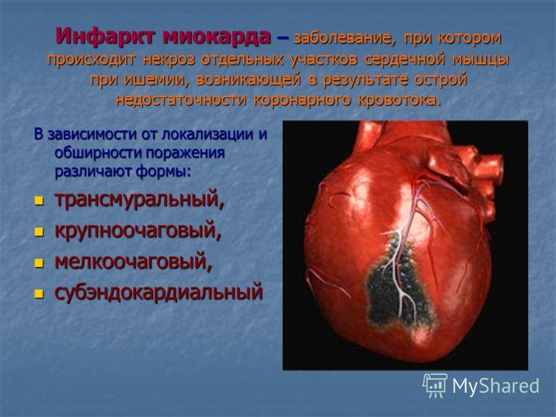 Презентация на тему ГОУ СПО Орехово зуевский медицинский  8 Инфаркт миокарда заболевание