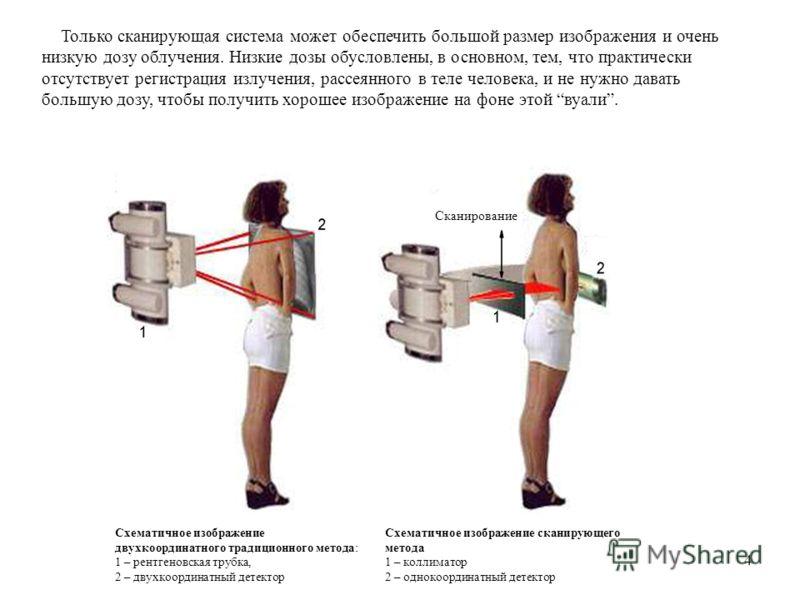 4 Схематичное изображение двухкоординатного традиционного метода: 1 – рентгеновская трубка, 2 – двухкоординатный детектор Схематичное изображение сканирующего метода 1 – коллиматор 2 – однокоординатный детектор Только сканирующая система может обеспе
