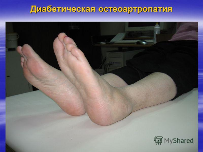 Диабетическая остеоартропатия