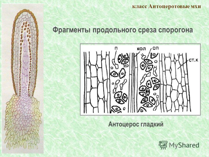класс Антоцеротовые мхи Антоцерос гладкий Фрагменты продольного среза спорогона