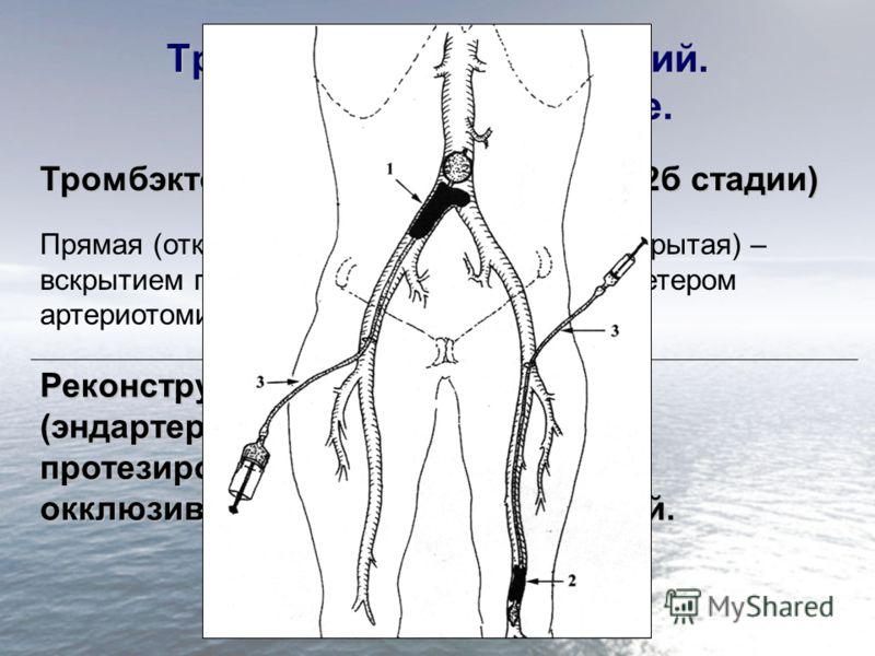Тромбоз. Эмболия артерий. Хирургическое лечение. Тромбэктомия и эмболэктомия (до 2б стадии) Прямая (открытая) – со вскрытием просвета - артериотомия Непрямая (закрытая) – балонным катетером Реконструктивные операции (эндартерэктомия, шунтирование, пр