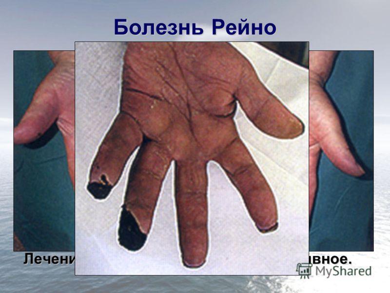 Болезнь Рейно Поражение артерий конечностей (чаще верхних) мелкого калибра; Болеют чаще женщины; В основе заболевания нарушение вазомоторной иннервации приводящее к спазму артериол. 3 стадии заболевания: –I стадия – ангиоспастическая; –II стадия – ан