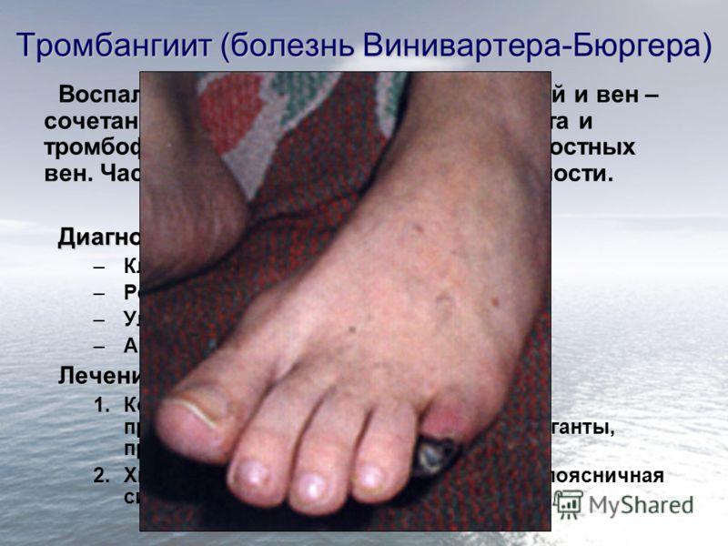 Тромбангиит (болезнь Винивартера-Бюргера) Воспалительный процесс стенок артерий и вен – сочетание облитерирующего эндартериита и тромбофлебита (мигрирующего) поверхностных вен. Часто осложняется гангреной конечности.Диагностика: –Клинический осмотр;