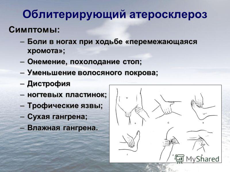 Облитерирующий атеросклероз Симптомы: –Боли в ногах при ходьбе «перемежающаяся хромота»; –Онемение, похолодание стоп; –Уменьшение волосяного покрова; –Дистрофия –ногтевых пластинок; –Трофические язвы; –Сухая гангрена; –Влажная гангрена.