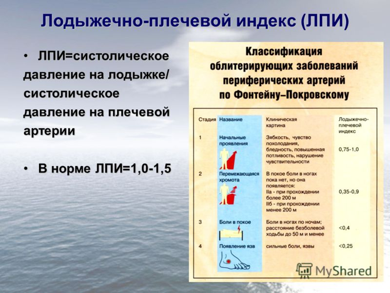 Лодыжечно-плечевой индекс (ЛПИ) ЛПИ=систолическоеЛПИ=систолическое давление на лодыжке/ систолическое давление на плечевой артерии В норме ЛПИ=1,0-1,5В норме ЛПИ=1,0-1,5