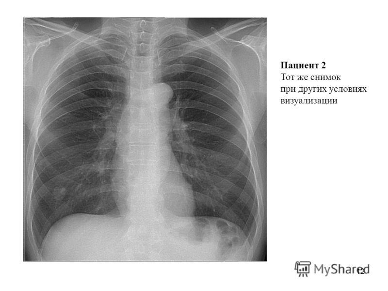 12 Пациент 2 Тот же снимок при других условиях визуализации