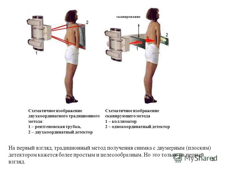 5 Схематичное изображение двухкоординатного традиционного метода: 1 – рентгеновская трубка, 2 – двухкоординатный детектор Схематичное изображение сканирующего метода 1 – коллиматор 2 – однокоординатный детектор На первый взгляд, традиционный метод по
