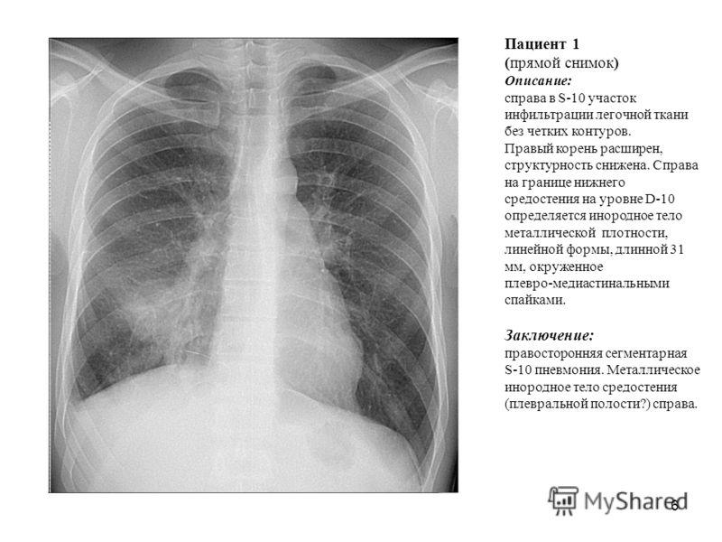 6 Пациент 1 (прямой снимок) Описание: справа в S-10 участок инфильтрации легочной ткани без четких контуров. Правый корень расширен, структурность снижена. Справа на границе нижнего средостения на уровне D-10 определяется инородное тело металлической