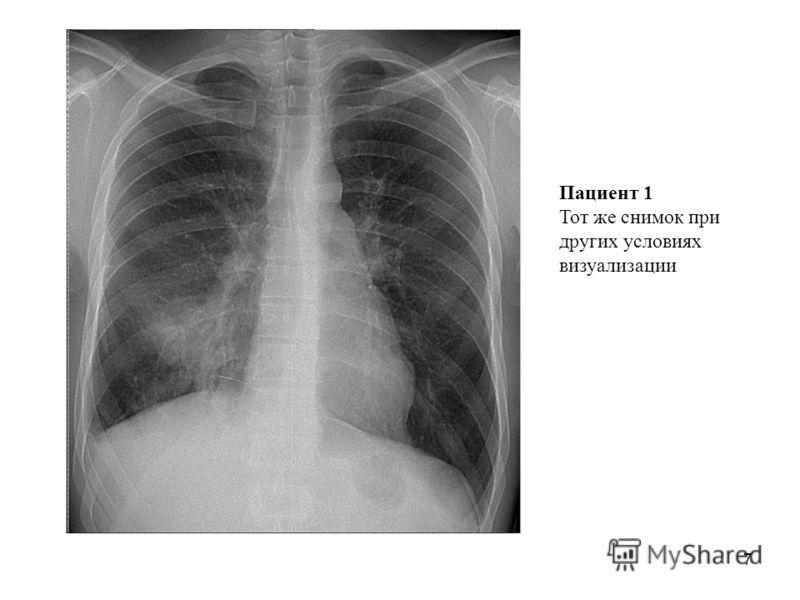 7 Пациент 1 Тот же снимок при других условиях визуализации