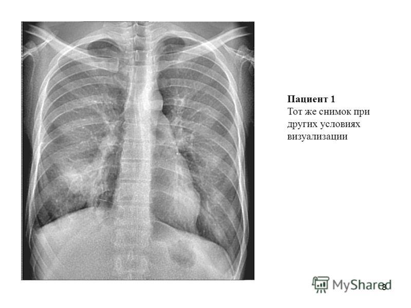 8 Пациент 1 Тот же снимок при других условиях визуализации