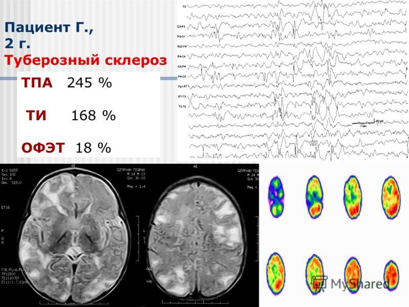 Пациент Г., 2 г. Туберозный склероз ТПА 245 % ТИ 168 % ОФЭТ 18 %