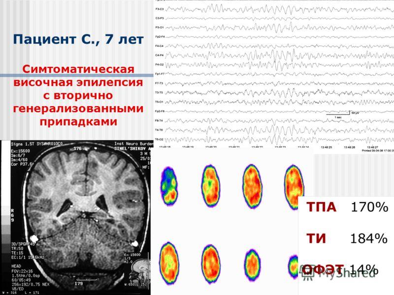 Пациент С., 7 лет Симтоматическая височная эпилепсия с вторично генерализованными припадками ТПА 170% ТИ 184% ОФЭТ 14%
