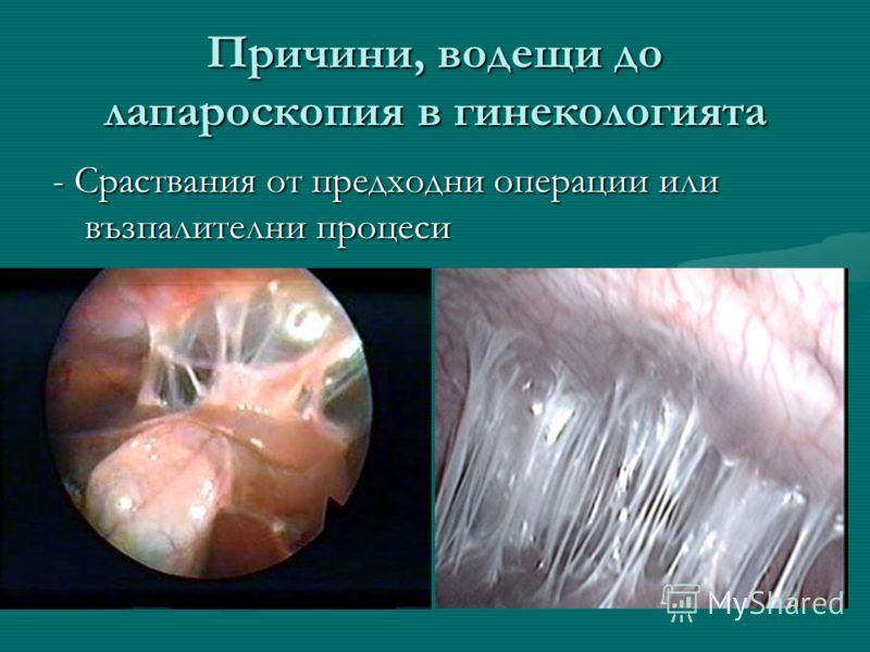 Причини, водещи до лапароскопия в гинекологията - Сраствания от предходни операции или възпалителни процеси