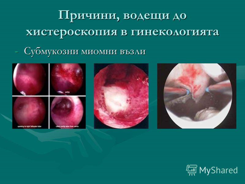Причини, водещи до хистероскопия в гинекологията -Субмукозни миомни възли