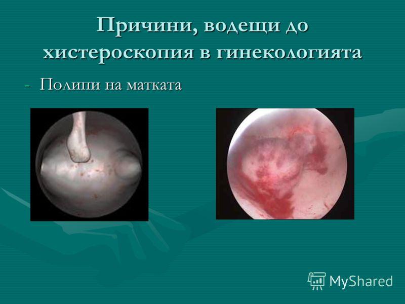 Причини, водещи до хистероскопия в гинекологията -Полипи на матката