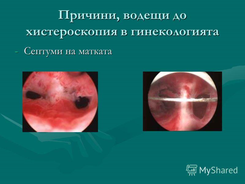Причини, водещи до хистероскопия в гинекологията -Септуми на матката