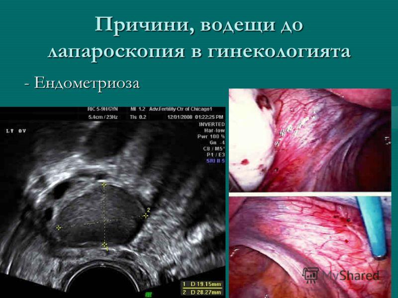 Причини, водещи до лапароскопия в гинекологията - Ендометриоза