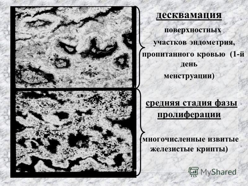 десквамация поверхностных участков эндометрия, пропитанного кровью (1-й день менструации) средняя стадия фазы пролиферации (многочисленные извитые железистые крипты)