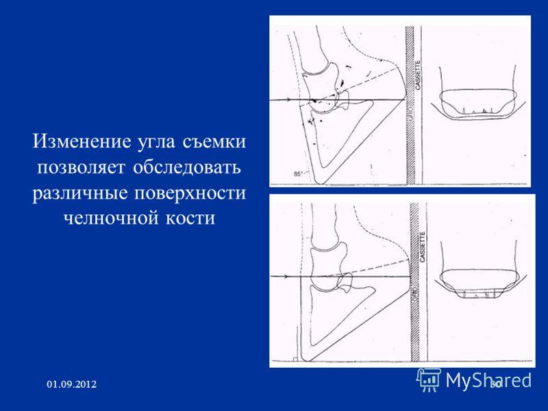 01.09.201230 Изменение угла съемки позволяет обследовать различные поверхности челночной кости