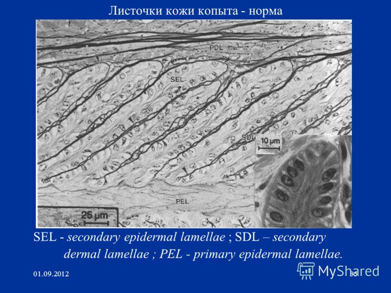 01.09.201235 Листочки кожи копыта - норма SEL - secondary epidermal lamellae ; SDL – secondary dermal lamellae ; PEL - primary epidermal lamellae.