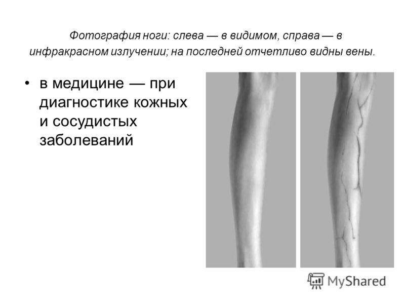 Фотография ноги: слева в видимом, справа в инфракрасном излучении; на последней отчетливо видны вены. в медицине при диагностике кожных и сосудистых заболеваний