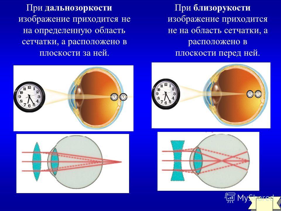 ГЛАЗ И ЗРЕНИЕ 200 Что такое близорукость и дальнозоркость? Как можно исправить такие дефекты зрения?