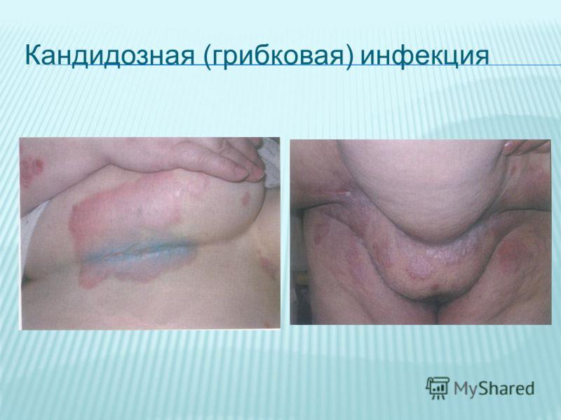 Кандидозная (грибковая) инфекция