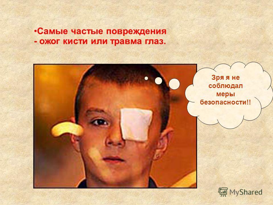 Самые частые повреждения - ожог кисти или травма глаз. Зря я не соблюдал меры безопасности!!