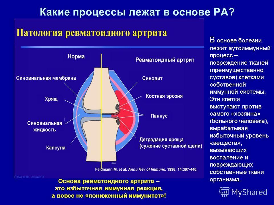 Какие процессы лежат в основе РА? В основе болезни лежит аутоиммунный процесс – повреждение тканей (преимущественно суставов) клетками собственной иммунной системы. Эти клетки выступают против самого «хозяина» (больного человека), вырабатывая избыточ