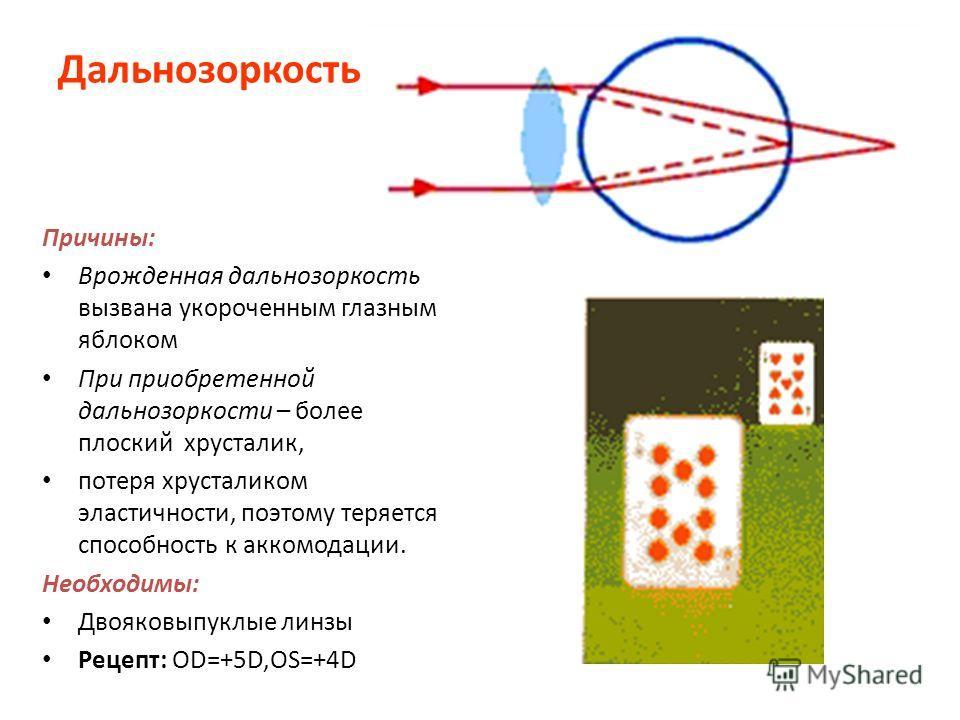 Дальнозоркость Причины: Врожденная дальнозоркость вызвана укороченным глазным яблоком При приобретенной дальнозоркости – более плоский хрусталик, потеря хрусталиком эластичности, поэтому теряется способность к аккомодации. Необходимы: Двояковыпуклые