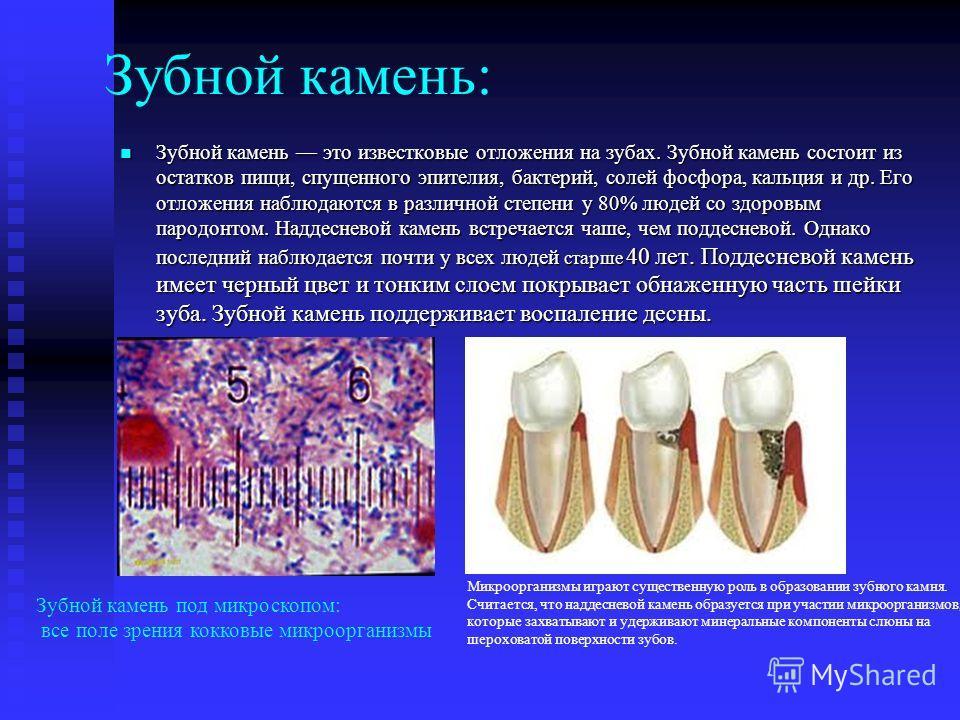 Зубной камень: Зубной камень это известковые отложения на зубах. Зубной камень состоит из остатков пищи, спущенного эпителия, бактерий, солей фосфора, кальция и др. Его отложения наблюдаются в различной степени у 80% людей со здоровым пародонтом. Над