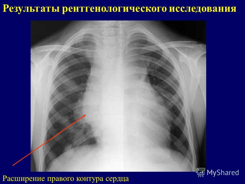 Результаты рентгенологического исследования Расширение правого контура сердца