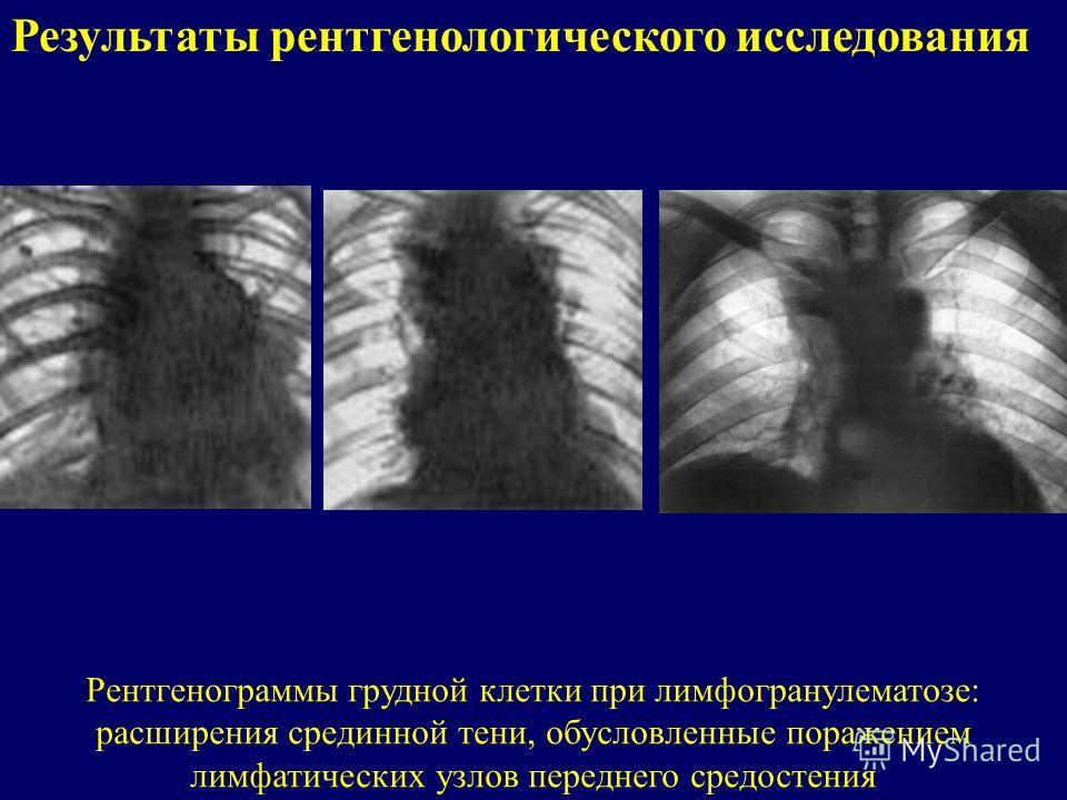 Результаты рентгенологического исследования Рентгенограммы грудной клетки при лимфогранулематозе: расширения срединной тени, обусловленные поражением лимфатических узлов переднего средостения