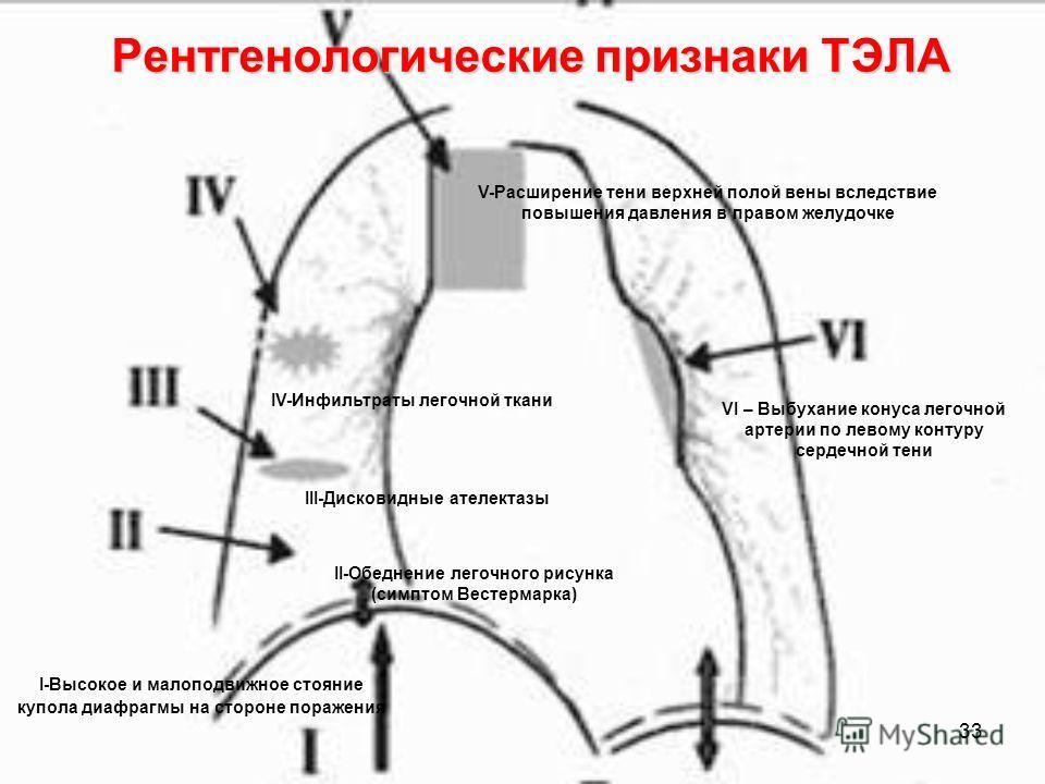 33 VI – Выбухание конуса легочной артерии по левому контуру сердечной тени I-Высокое и малоподвижное стояние купола диафрагмы на стороне поражения Рентгенологические признаки ТЭЛА II-Обеднение легочного рисунка (симптом Вестермарка) III-Дисковидные а