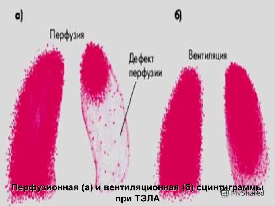 37 Перфузионная (а) и вентиляционная (б) сцинтиграммы при ТЭЛА