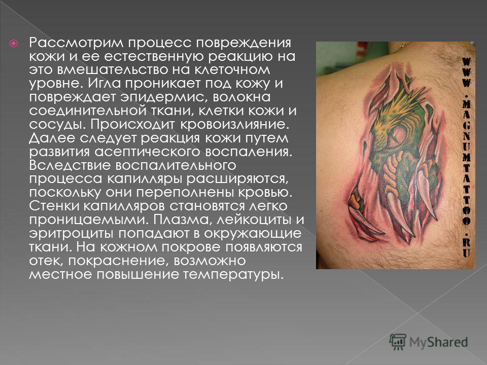 Рассмотрим процесс повреждения кожи и ее естественную реакцию на это вмешательство на клеточном уровне. Игла проникает под кожу и повреждает эпидермис, волокна соединительной ткани, клетки кожи и сосуды. Происходит кровоизлияние. Далее следует реакци