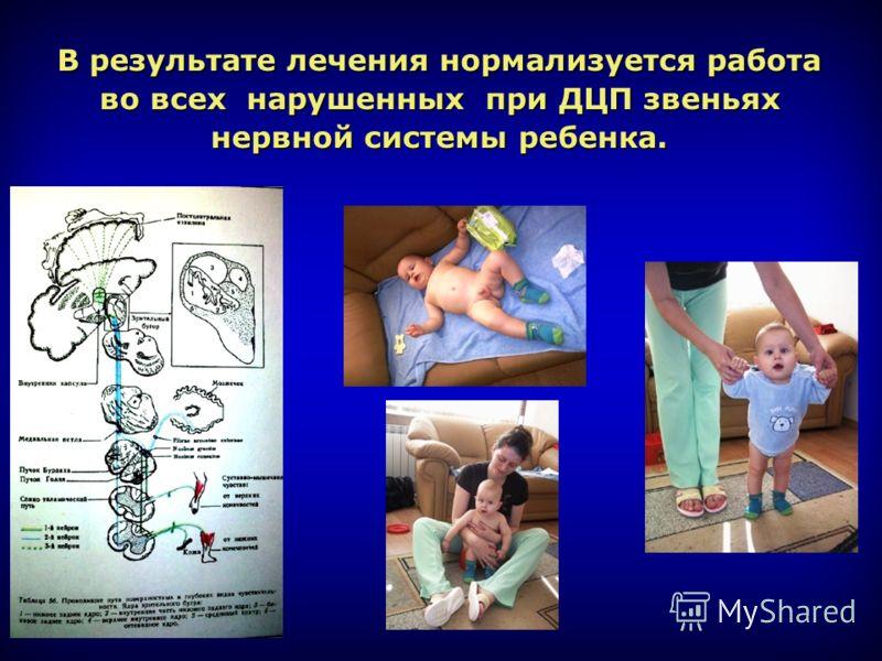 В результате лечения нормализуется работа во всех нарушенных при ДЦП звеньях нервной системы ребенка.