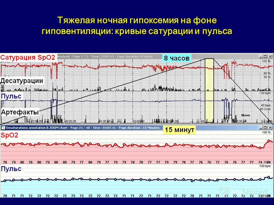 Тяжелая ночная гипоксемия на фоне гиповентиляции: кривые сатурации и пульса