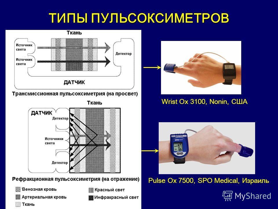 ТИПЫ ПУЛЬСОКСИМЕТРОВ Pulse Ox 7500, SPO Medical, Израиль Wrist Ox 3100, Nonin, США
