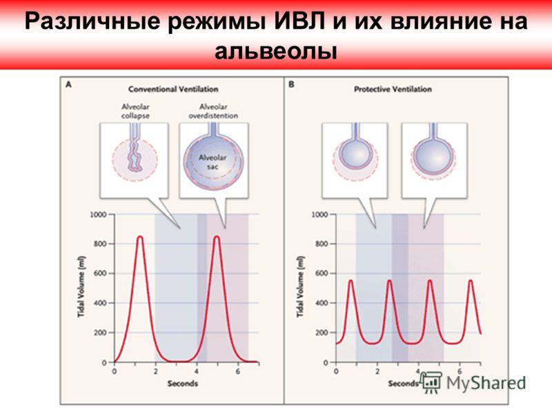 Различные режимы ИВЛ и их влияние на альвеолы