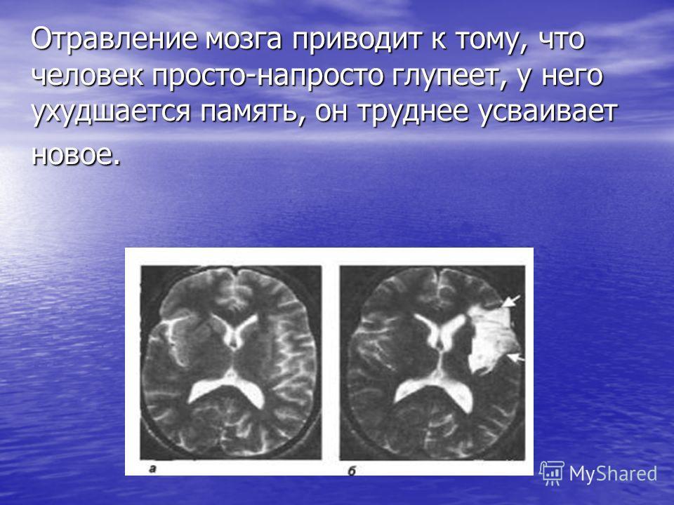 Отравление мозга приводит к тому, что человек просто-напросто глупеет, у него ухудшается память, он труднее усваивает новое.