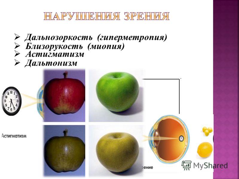 Дальнозоркость (гиперметропия) Близорукость (миопия) Астигматизм Дальтонизм