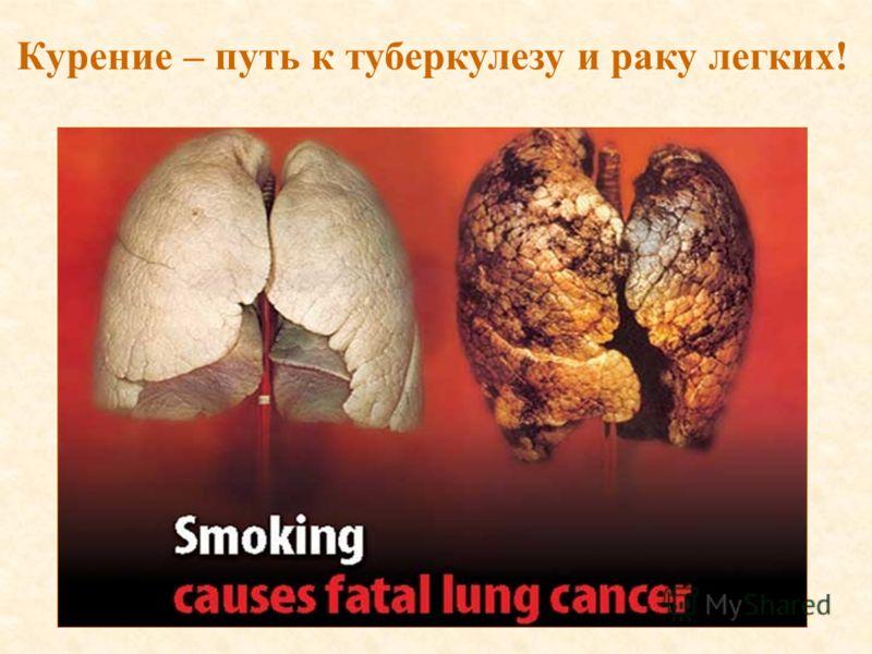 Курение – путь к туберкулезу и раку легких!